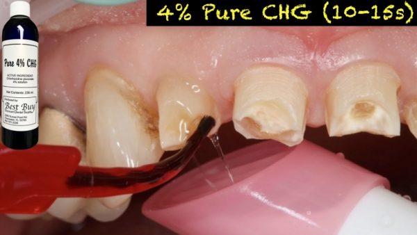 Pure 4% CHG 1/2 Case: 6 Bottles