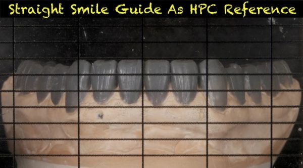 Straight Smile Guide